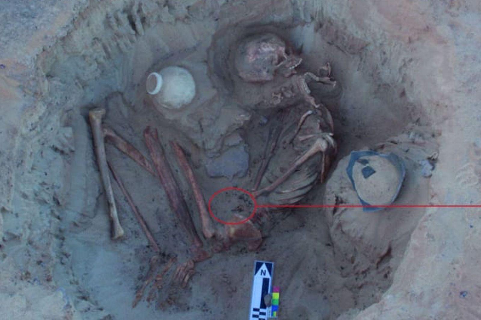 Esqueleto de una mujer y su feto