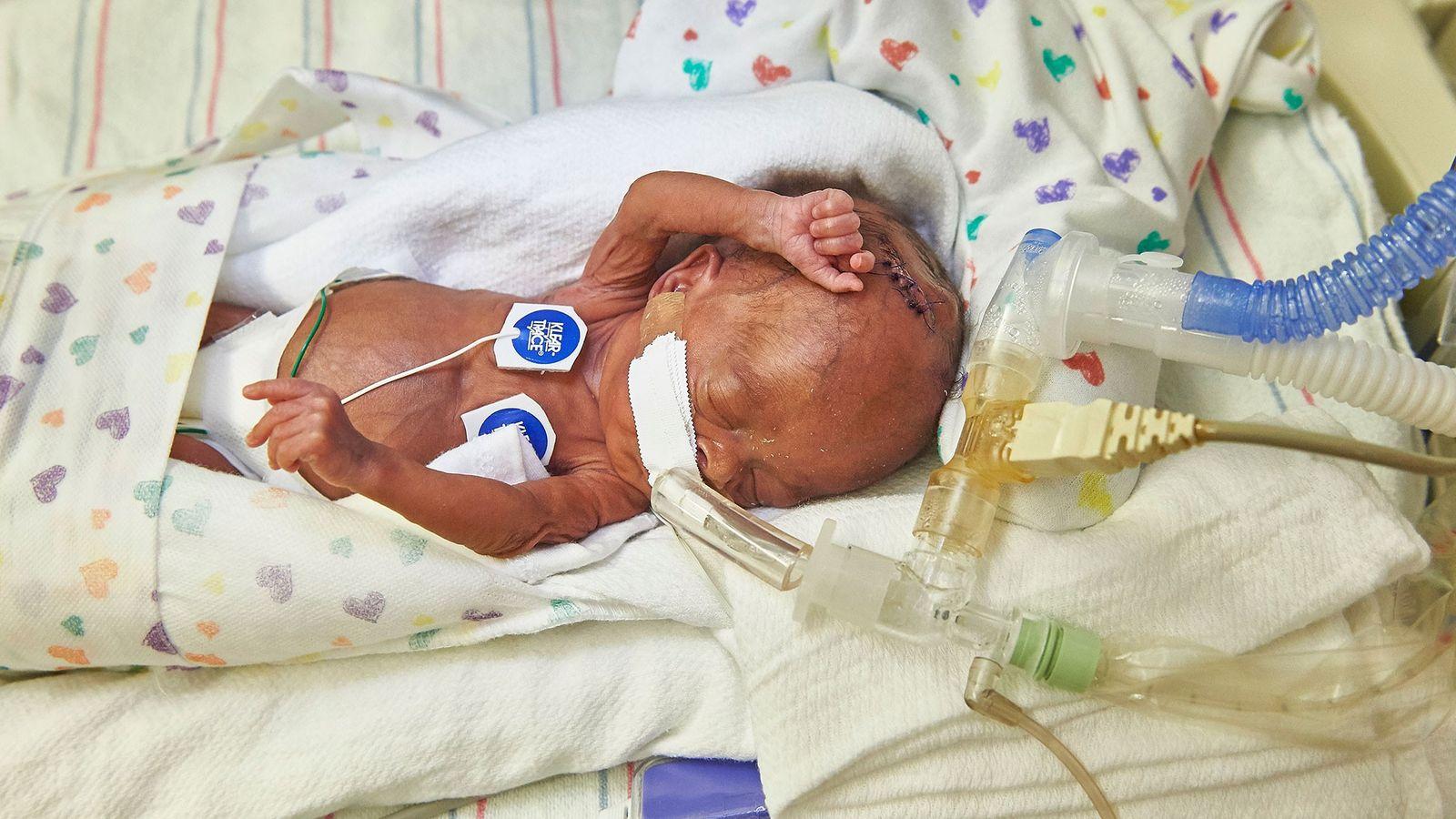 Bebé prematuro.