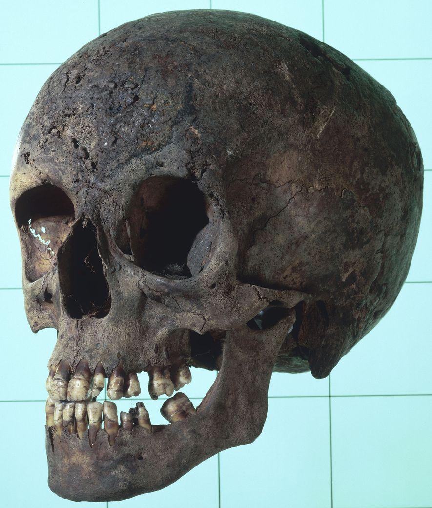 El cráneo sifilítico de una mujer con varias lesiones erosivas. Estas lesiones son fundamentales para identificar ...