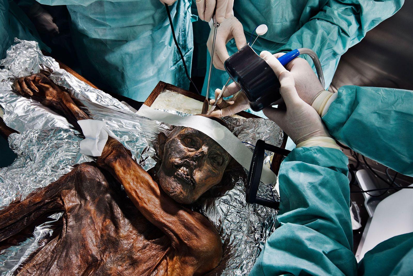 Restos de Ötzi