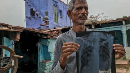 Silicosis: una epidemia entre los mineros de la India