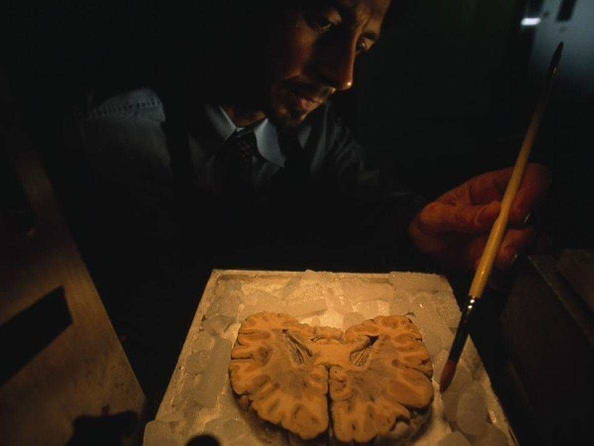 Gracias a las precisas técnicas de corte, los investigadores tienen la posibilidad de examinar un trozo …