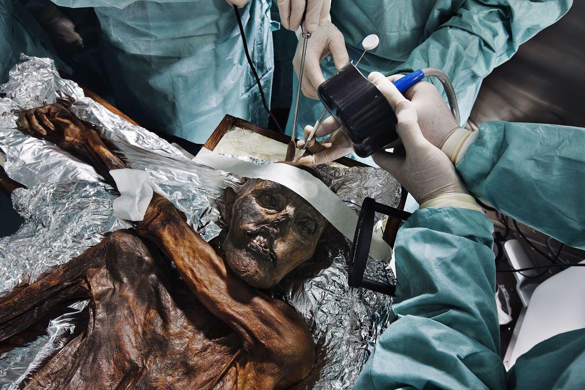Autopsia del hombre de hielo