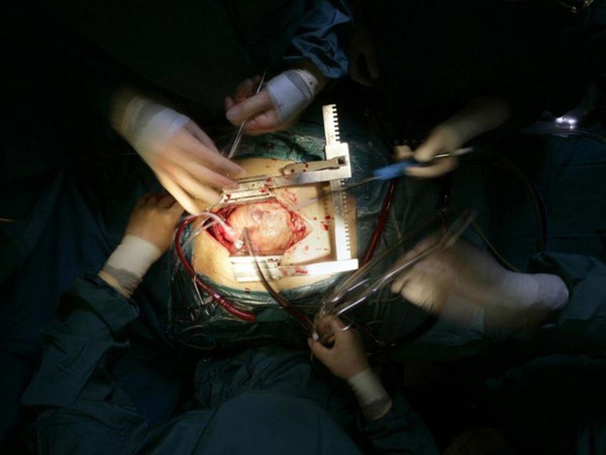 Implante de un corazón artificial