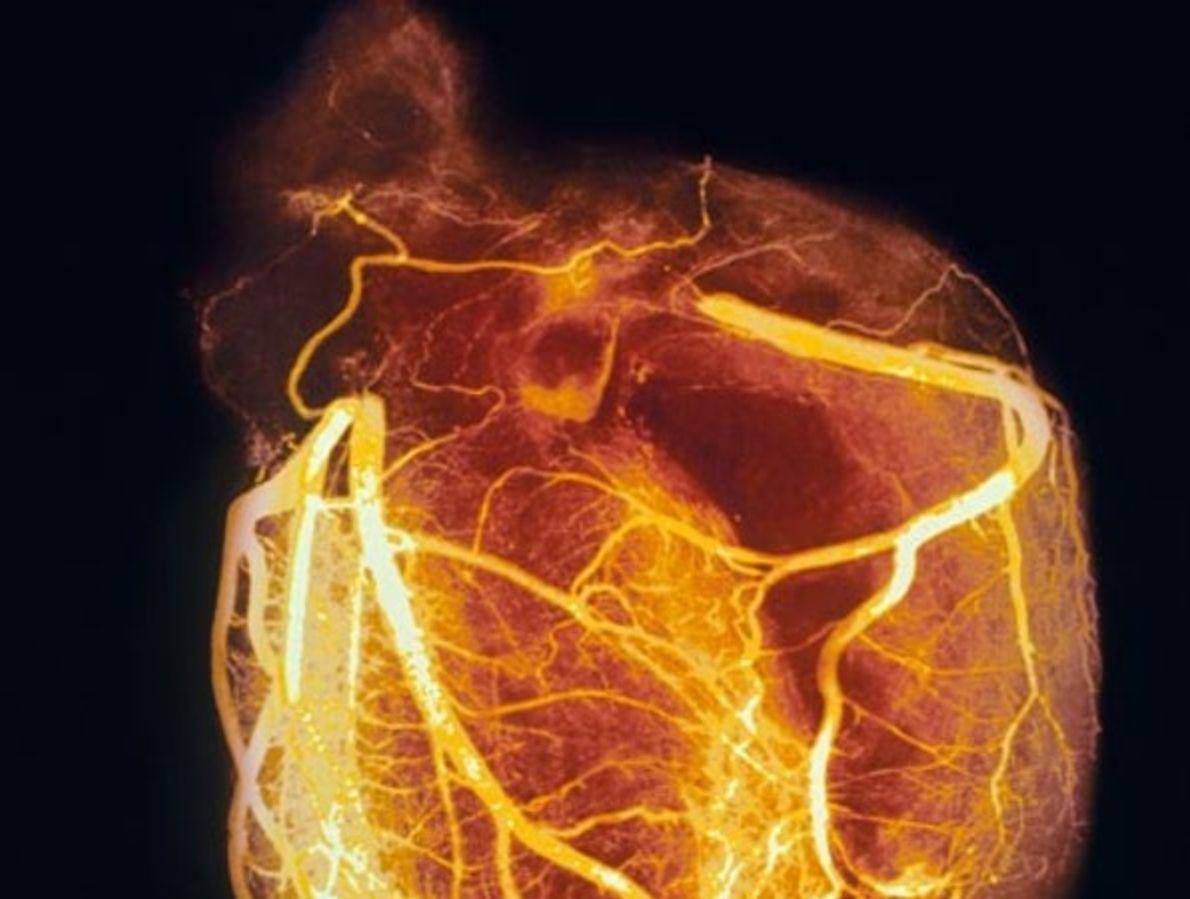 Angiograma de un corazón sano