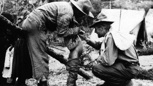 La lucha contra la viruela