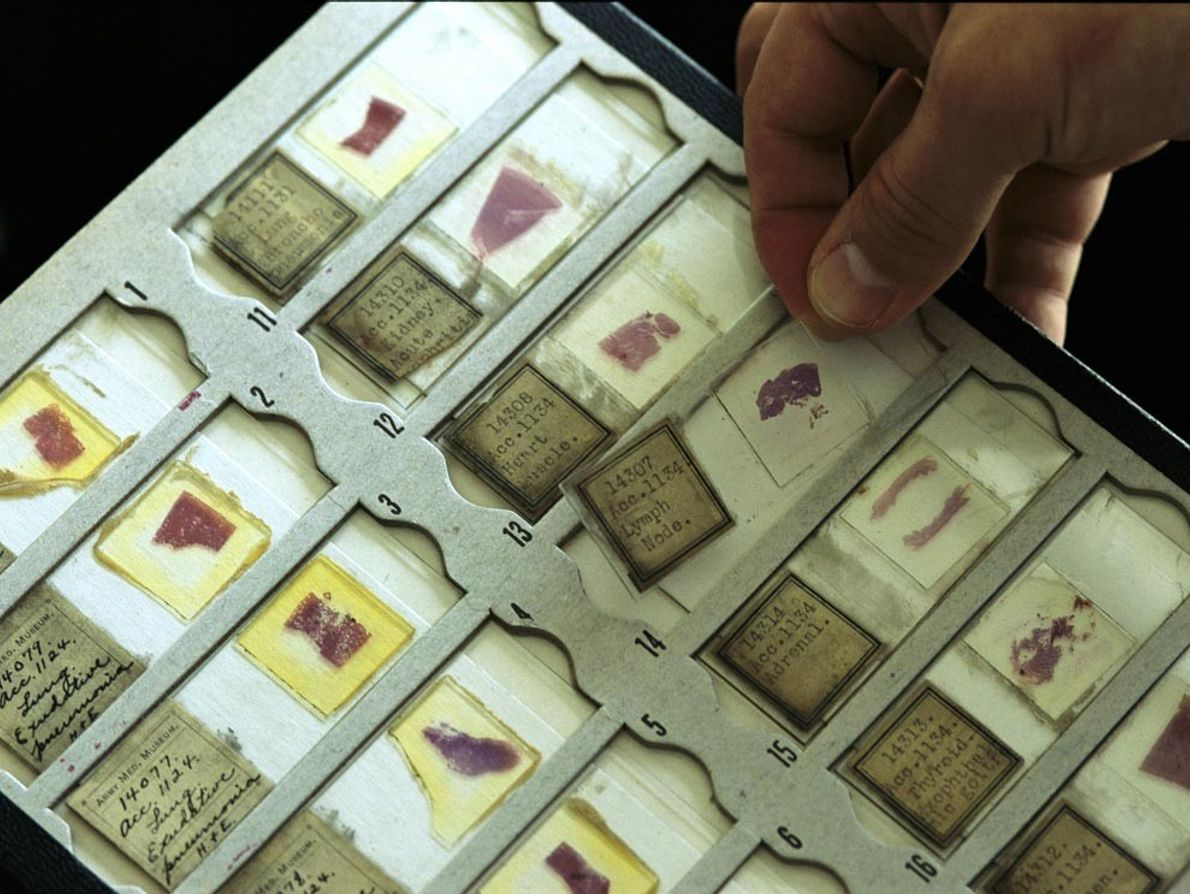 Purplish samples of lung tissue from 1918 tell a story of disease and death. Scientists at ...