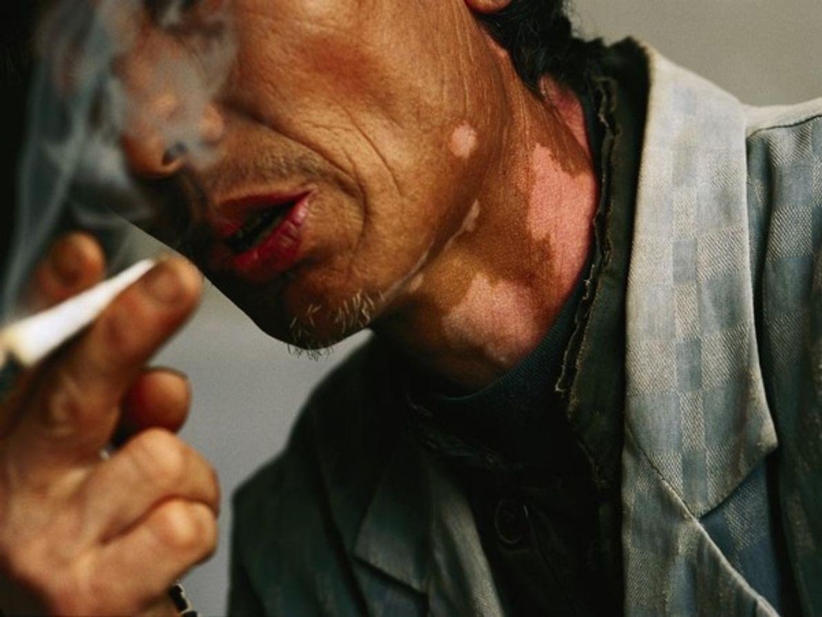 Un residente en Hebei, China, afirma que las lesiones en su cuello son producto de la …