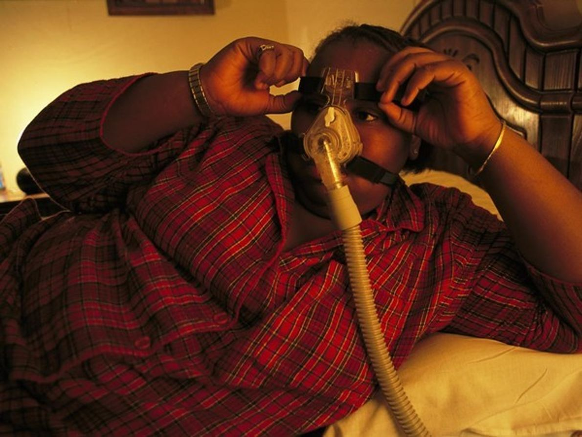 Un adolescente de Richmond, Virginia, lleva un dispositivo para trtar la apnea del sueño, una afección …