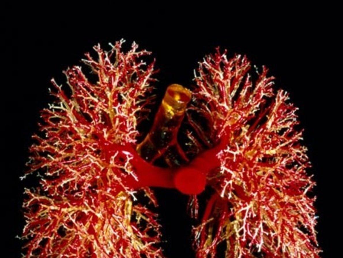 Los bronquios se ramifican como coral en este molde de resina que también muestra arterias pulmonales …