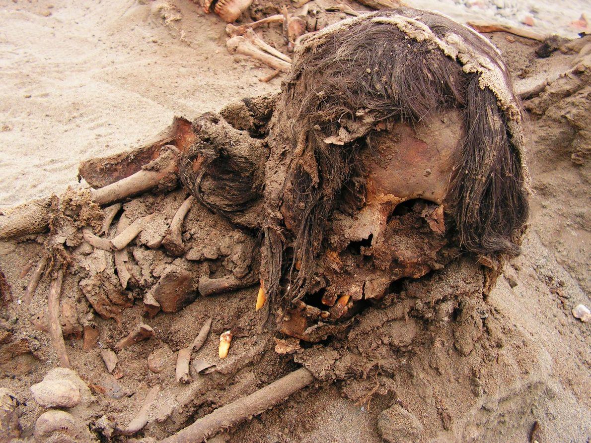 Cadáver infantil
