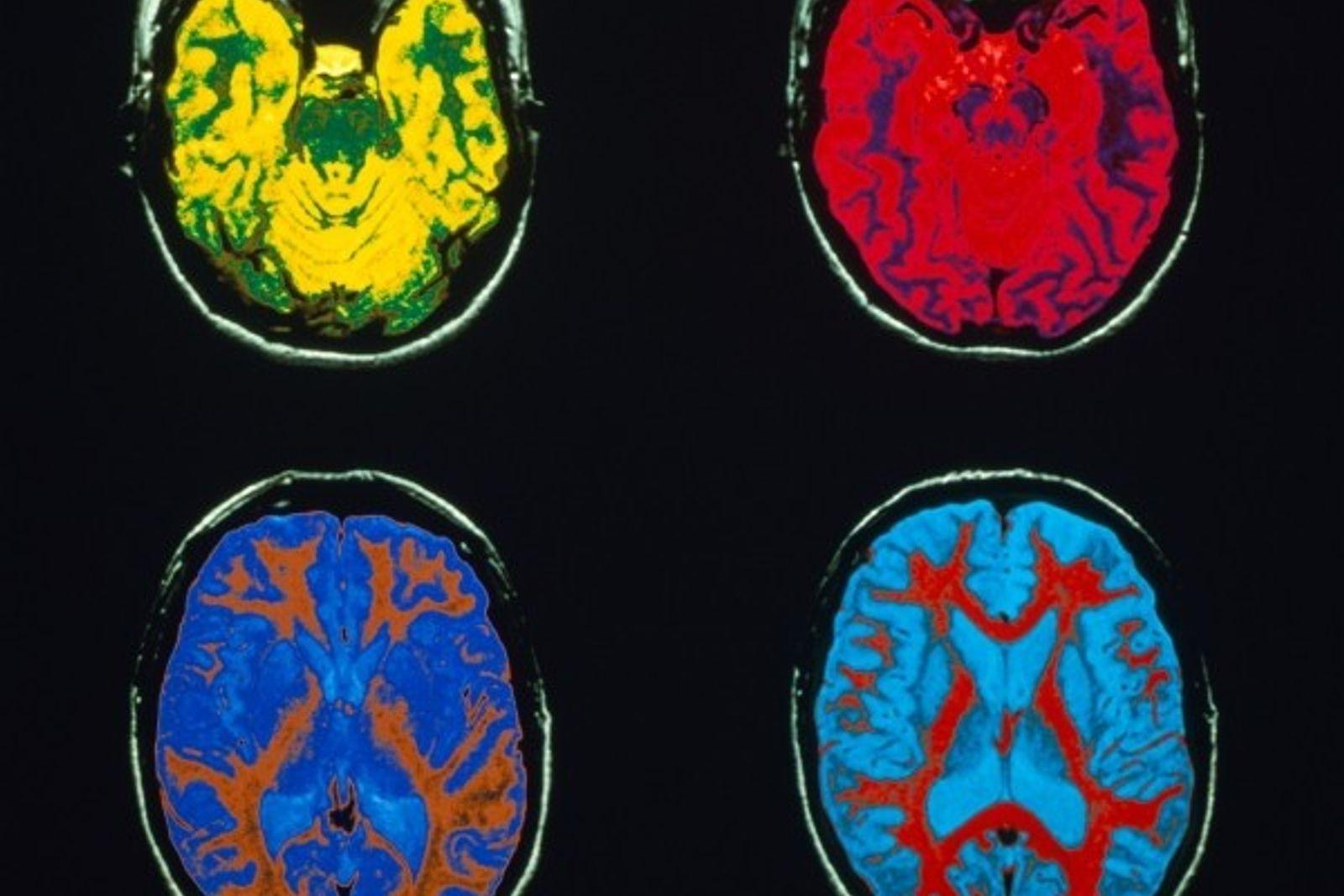 Fotos del cerebro humano