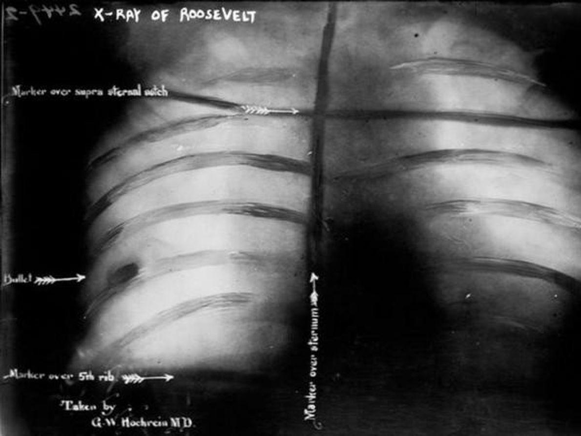 Esta radiografía muestra la caja torácica del presidente estadounidense Theodore Roosevelt después del intento de asesinato …