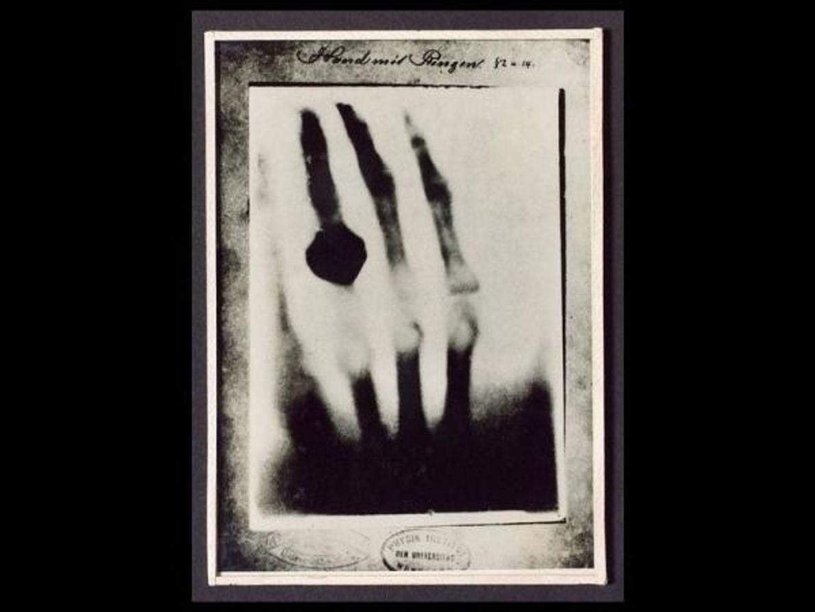 Esta imagen tiene 115 años y es una de las primeras realizadas con rayos X. La …