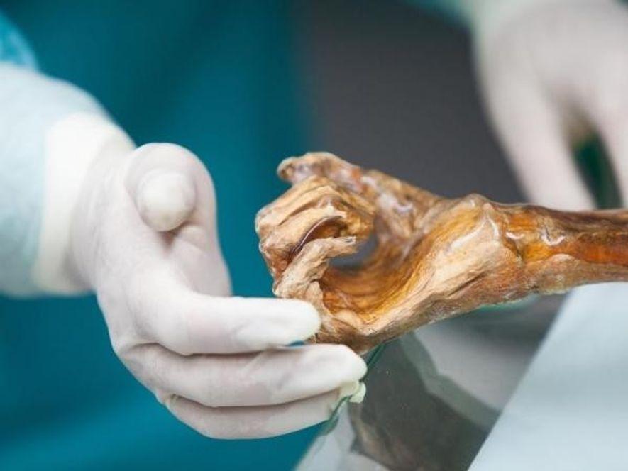 Un científico sujeta la mano de Ötzi, la momia de 3.500 años, durante una de las autopsias que se le han practicado.