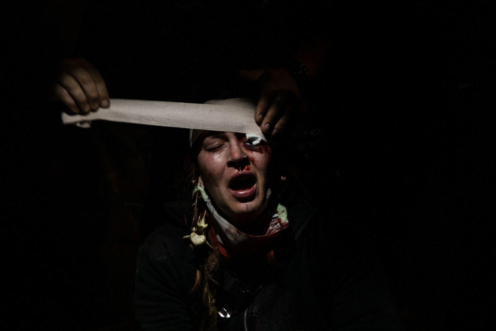 Manifestante herida