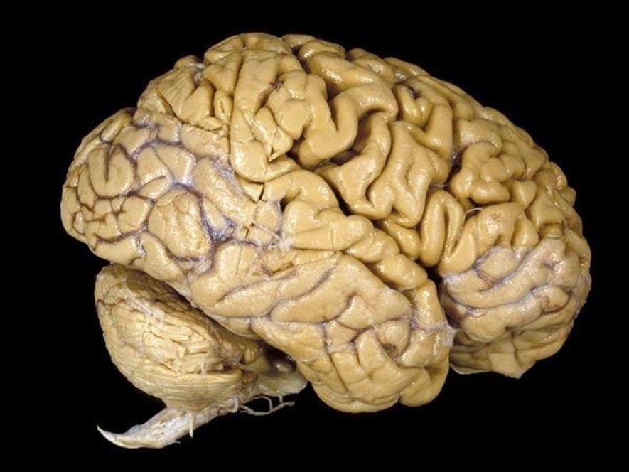 Compresión del cerebro humano