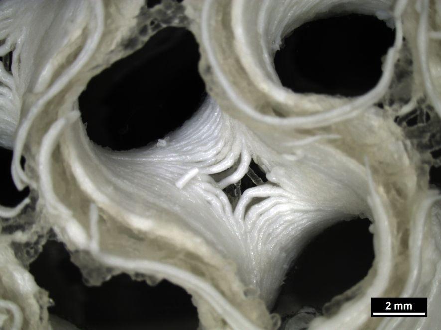"""Vista cercana del crecimiento del hueso bioimpreso con células madre humanas, que utiliza plasma sanguíneo humano como una """"tinta biológica"""" rica en nutrientes con la adición de un cemento óseo de fosfato de calcio como material de soporte de la estructura."""