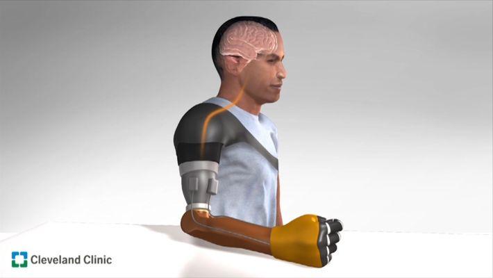 Recrean la sensación de movimiento en prótesis robóticas de personas amputadas