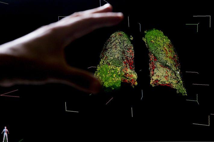 Pulmones 3D
