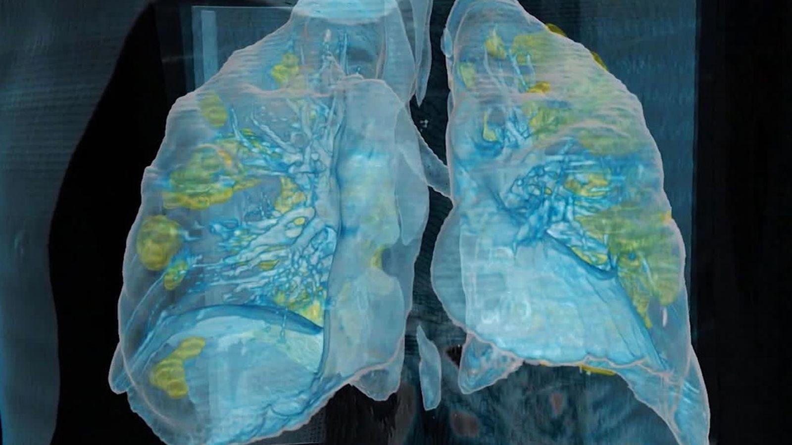 ¿Qué es la «hipoxia silenciosa», un síntoma furtivo de la COVID-19?