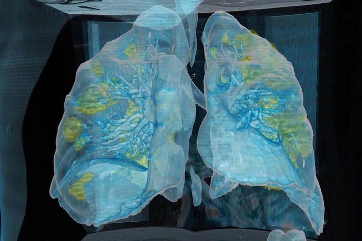 Daños pulmonares