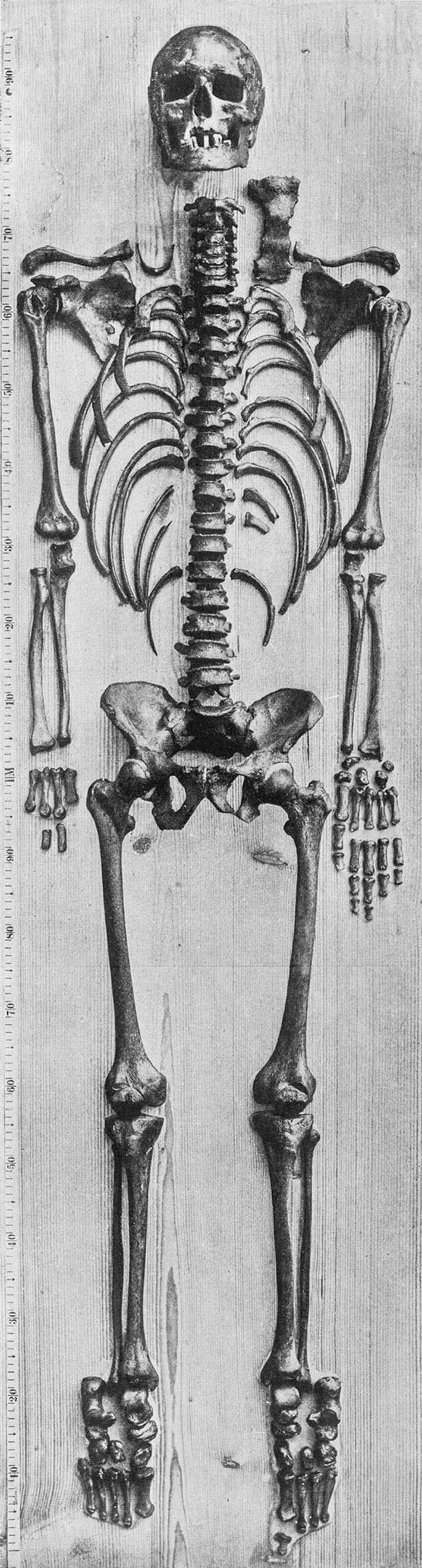 Esqueleto de Bach