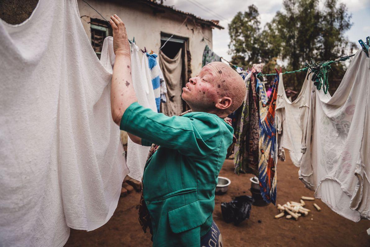 Vivir con albinismo