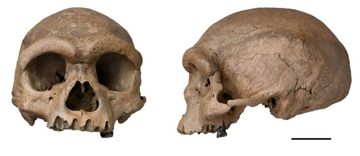 Cráneo de Harbin
