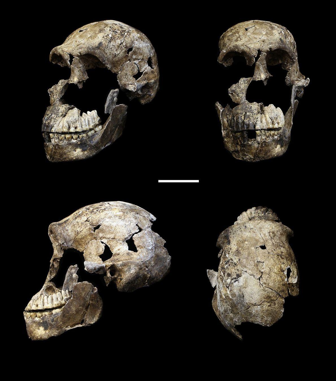 Cráneo en 4 perspectivas