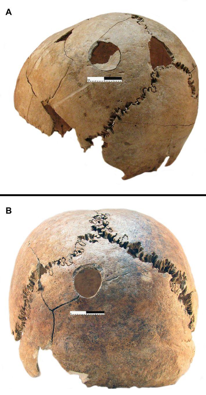 Contusiones en los cráneos de un niño y una mujer joven