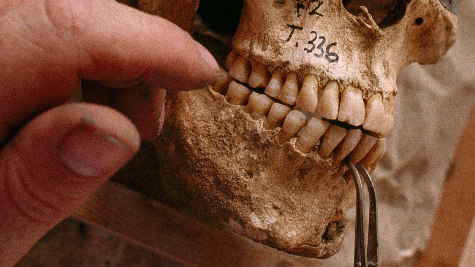 Cráneo de la antigua Grecia
