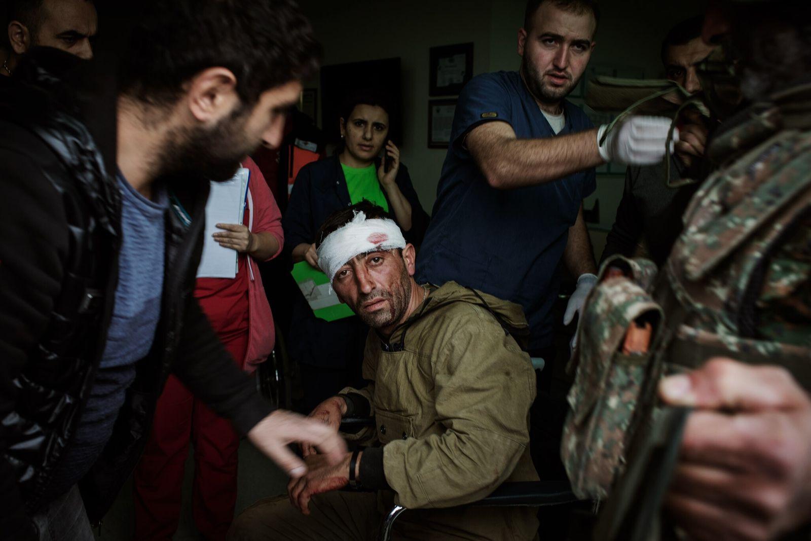 Combatiente herido del conflicto de Nagorno-Karabaj