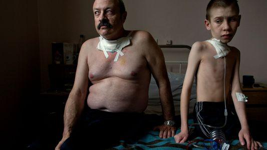 Los hijos de los supervivientes de Chernóbil no presentan un exceso de mutaciones genéticas