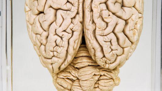 ¿Qué significa para los humanos que se hayan revivido parcialmente cerebros de cerdo horas después de ...