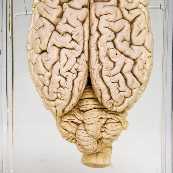 Cerebro de cerdo