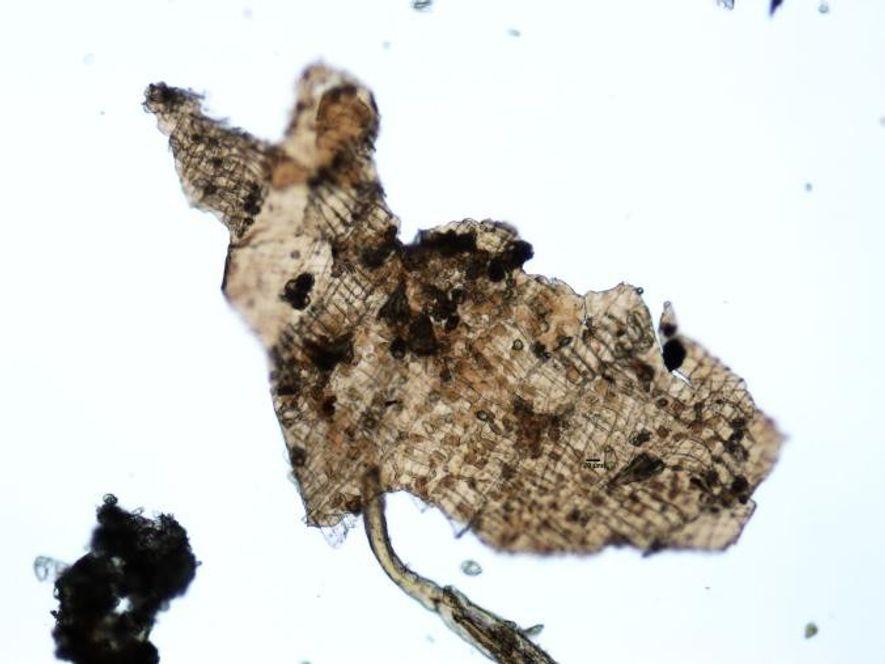 Un pequeño fragmento de tejido vegetal sin digerir que vieron los investigadores en los contenidos gástricos del Hombre de Hielo.