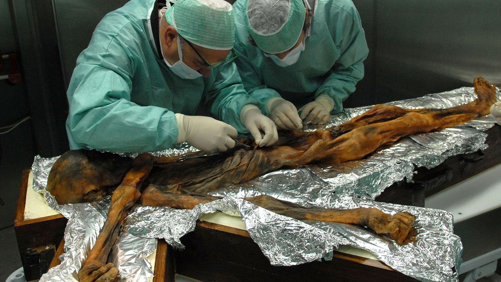 Estómago de Ötzi